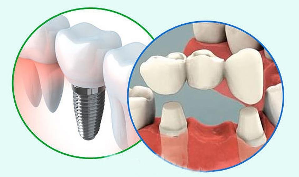 Восстанавливаем зубной ряд: мост или имплантат?