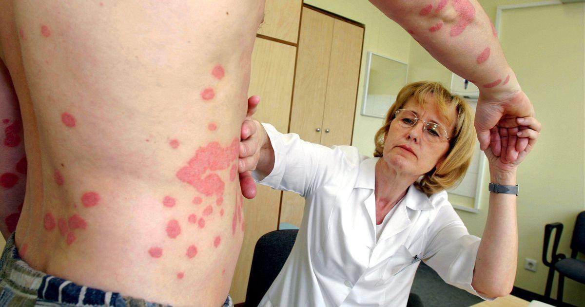 Какие кожные болезни могут появиться осенью?