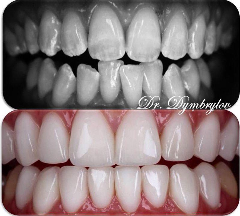 Что делать при отсутствии жевательных зубов?
