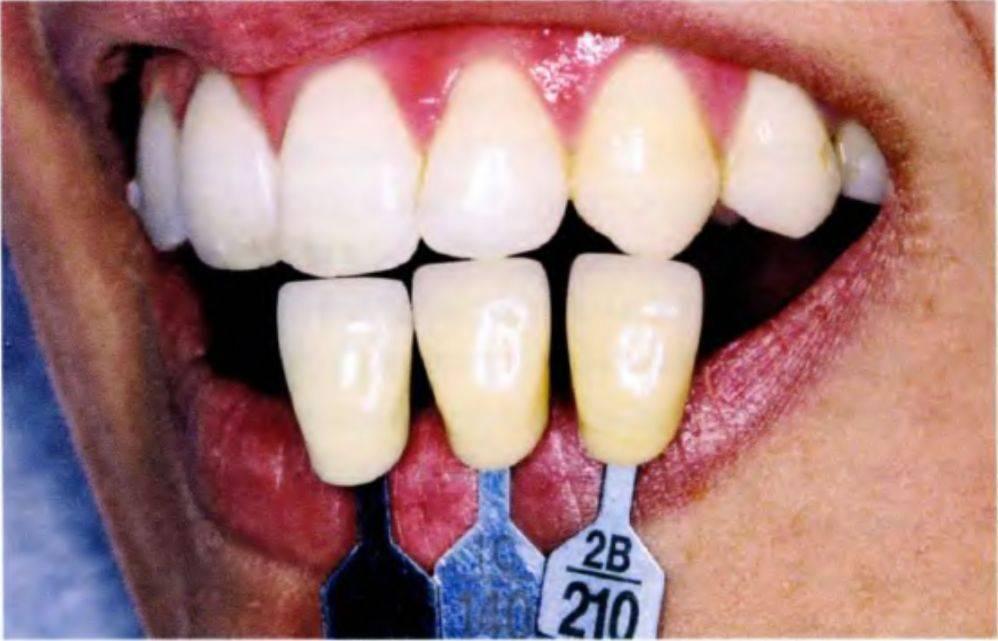 Как лучше отбелить зубы в стоматологии