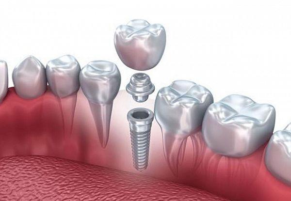 Картинки по запросу имплантация зубов