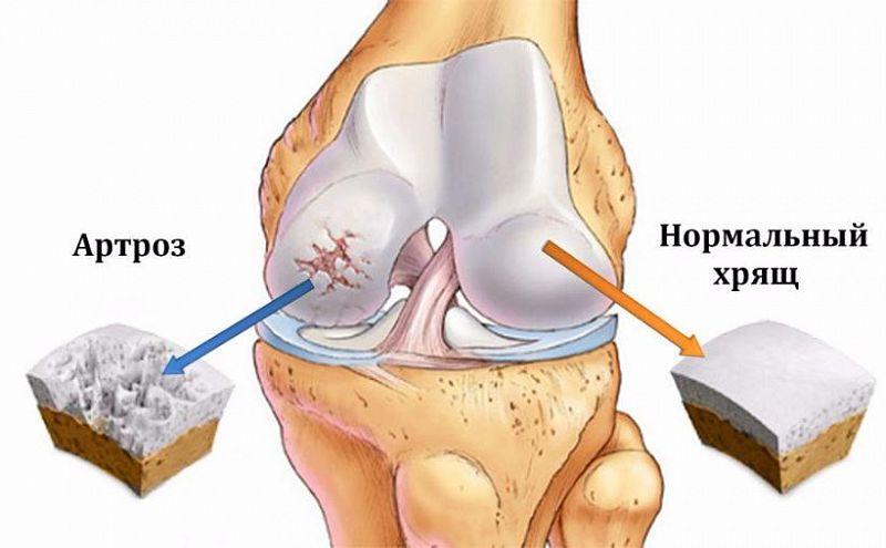 С болями в уколах коленных суставов - Гонартроз суставов